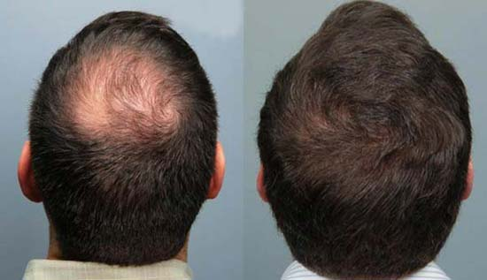 antes e depois full hairs