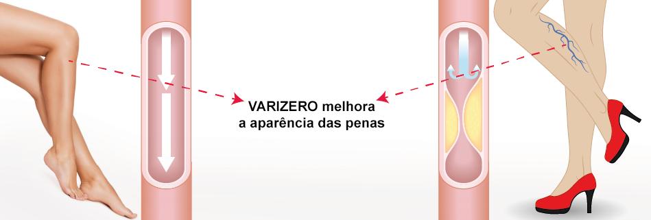 Varizero Funciona